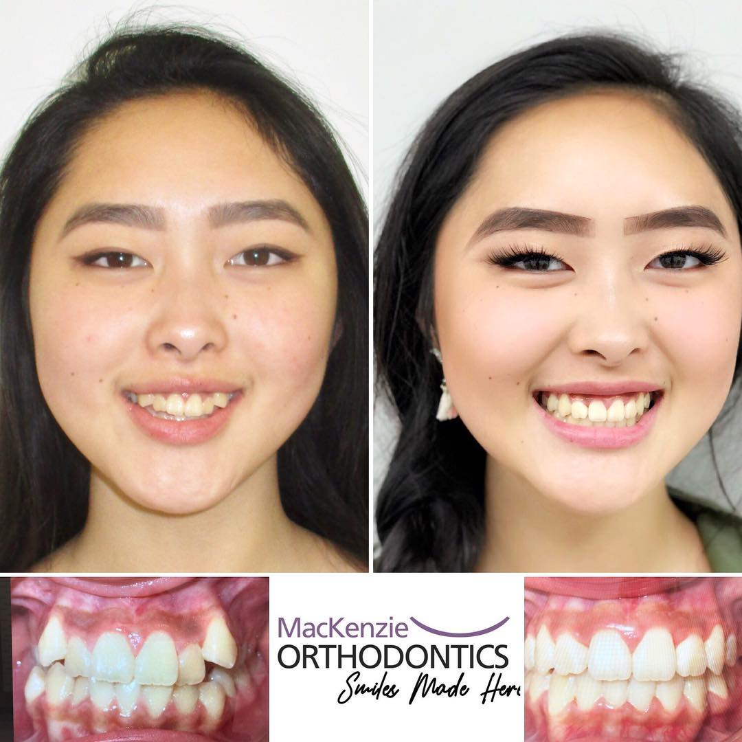 Braces for 20 months