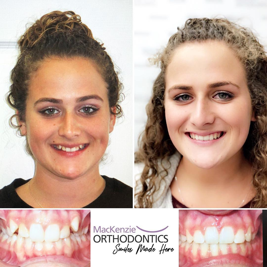 Braces for 12 months