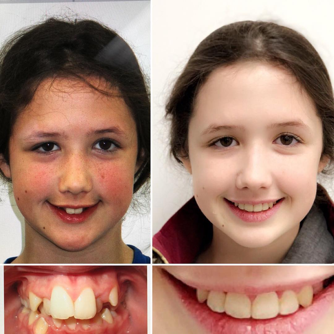 Braces for 21 months