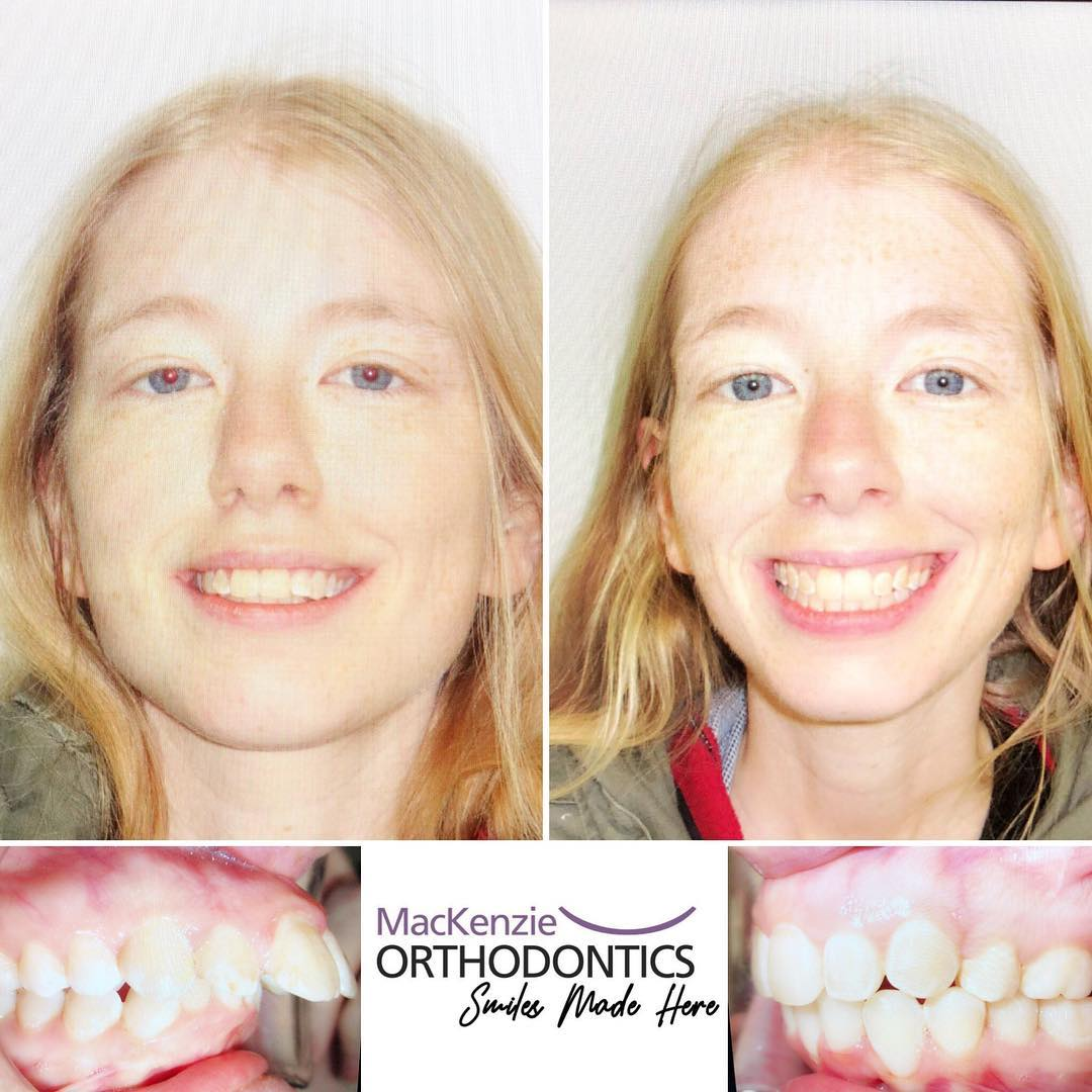 Invisalign for 20 months