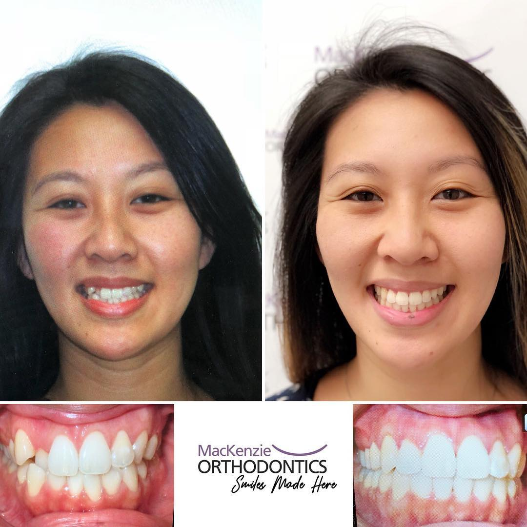 Invisalign for 7 months
