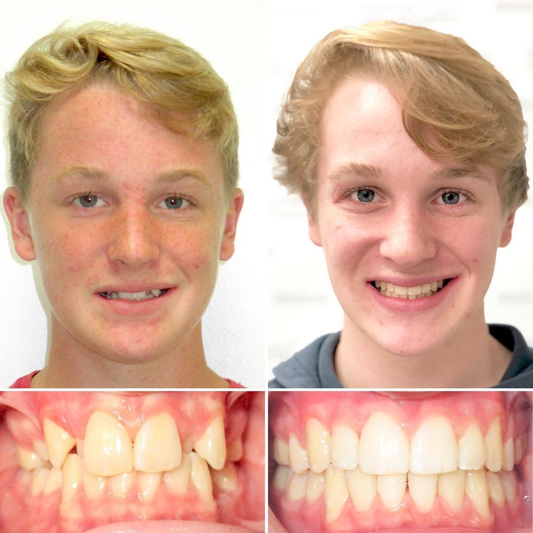 Invisalign for 15 months