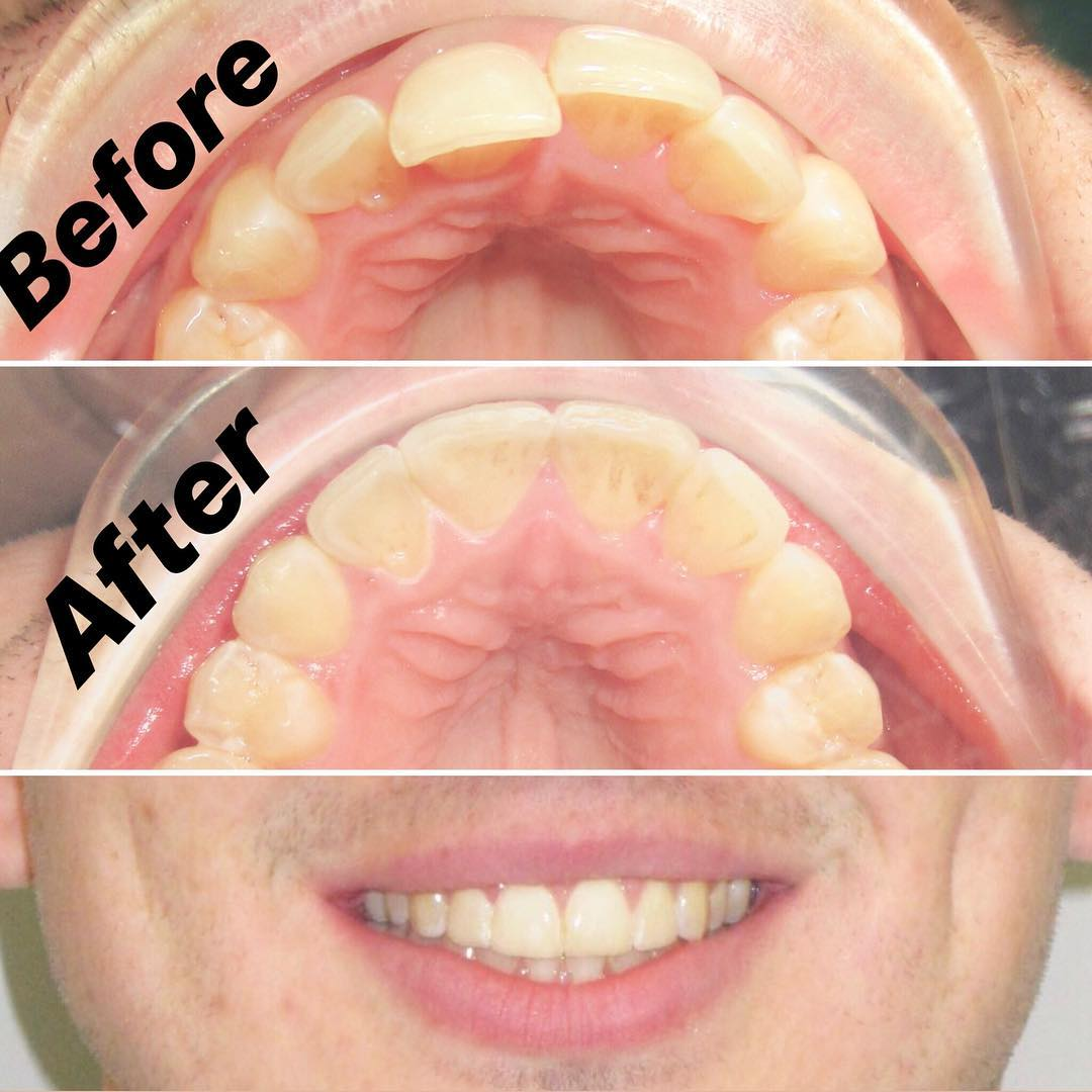 Invisalign for 10 weeks