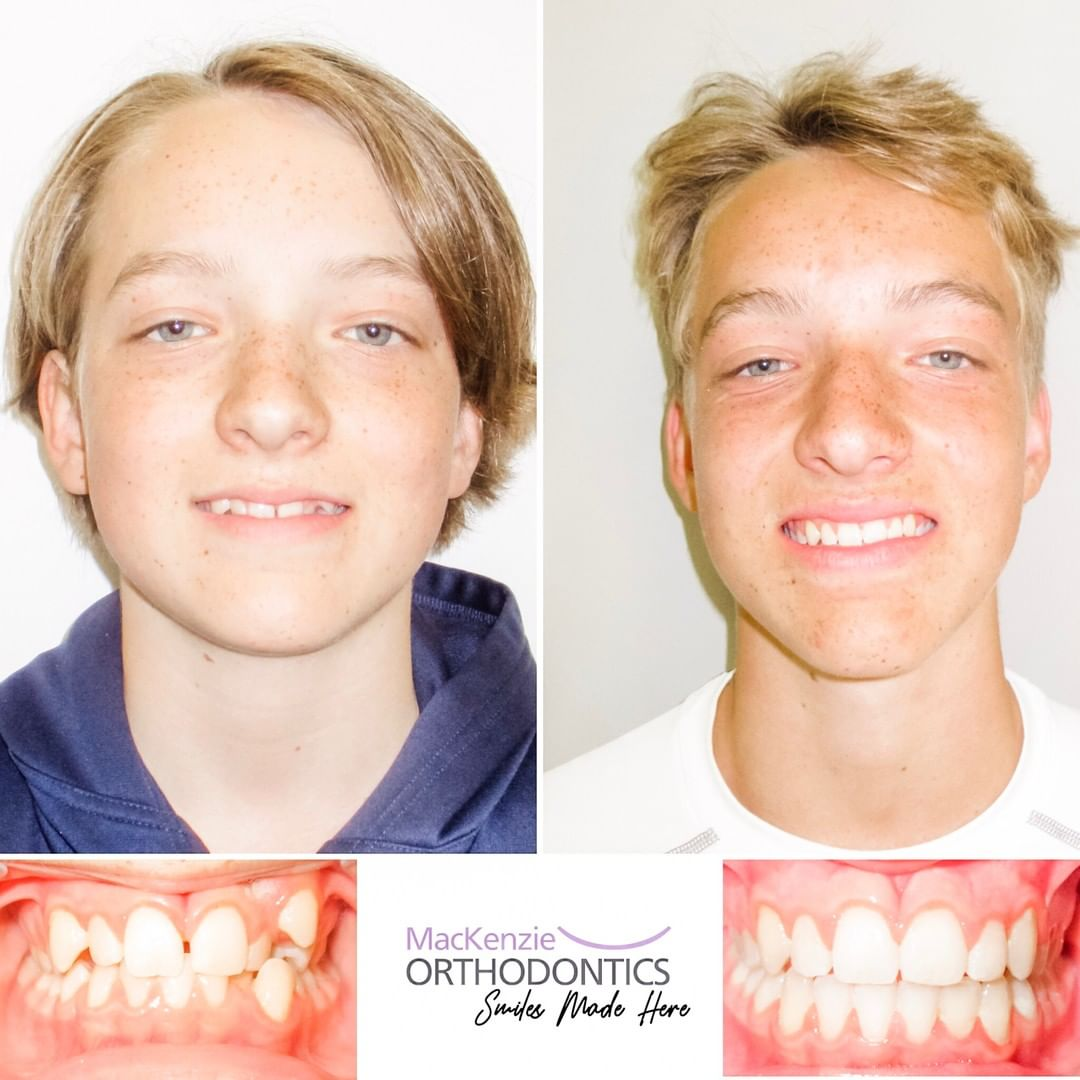 Invisalign for 13 months