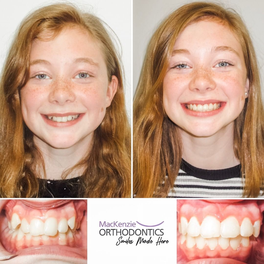Braces for 10 months