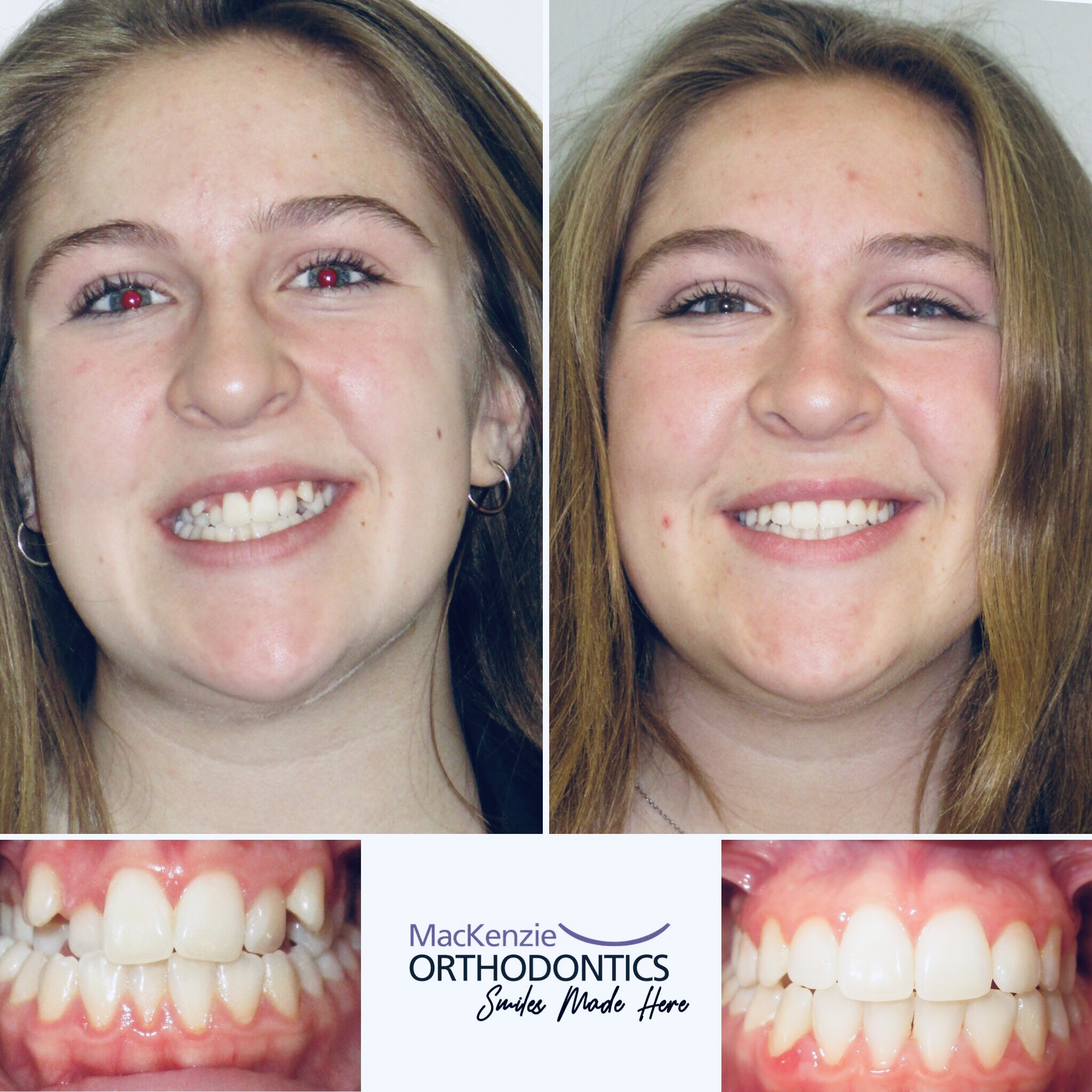 Braces for 17 months
