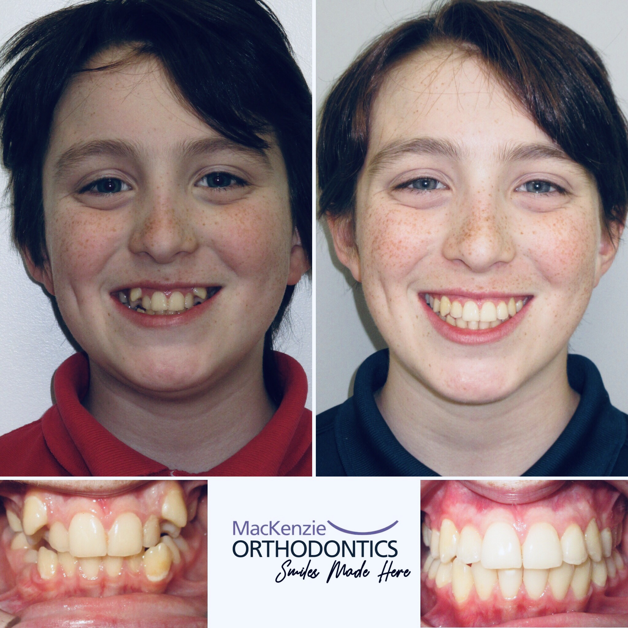 Invisalign for 24 months