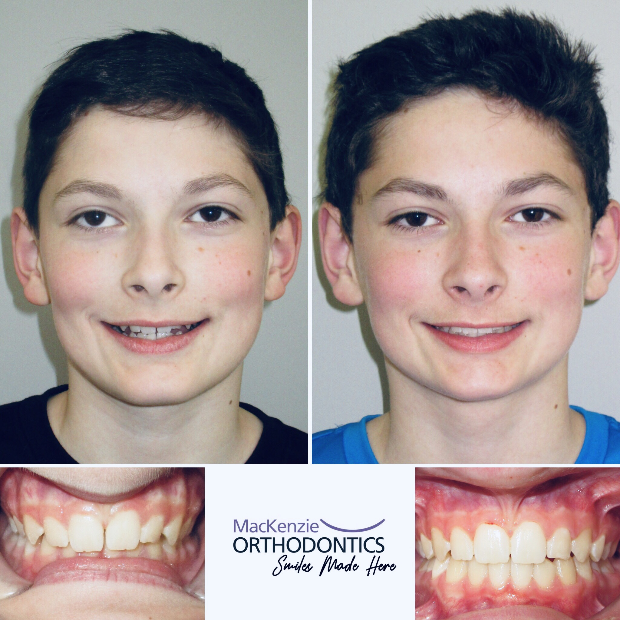 Invisalign for 9 months