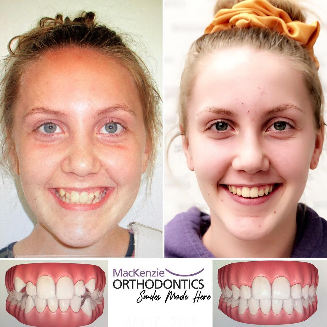 Invisalign for 16 months