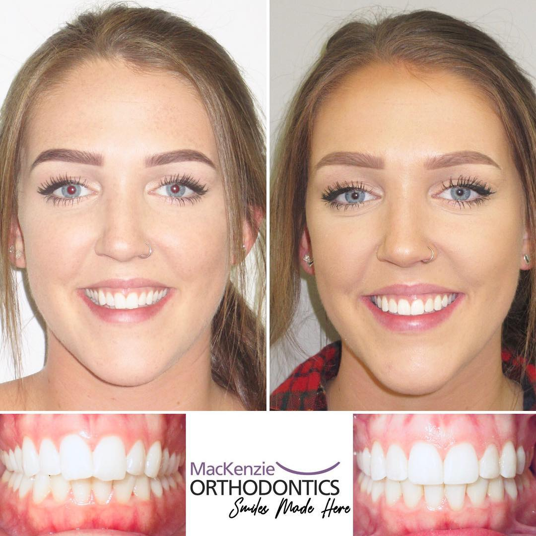 Invisalign for 5 months