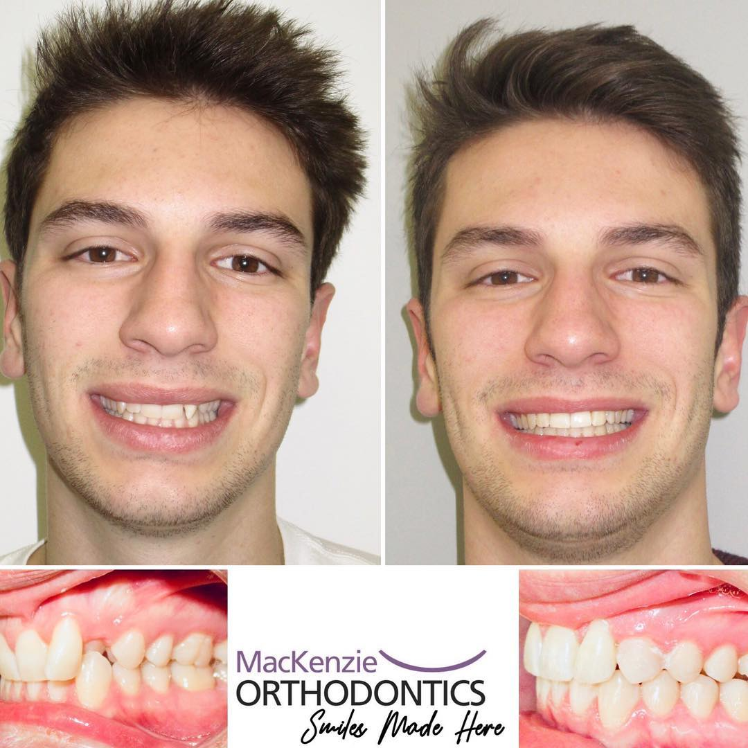 Invisalign for 11 months