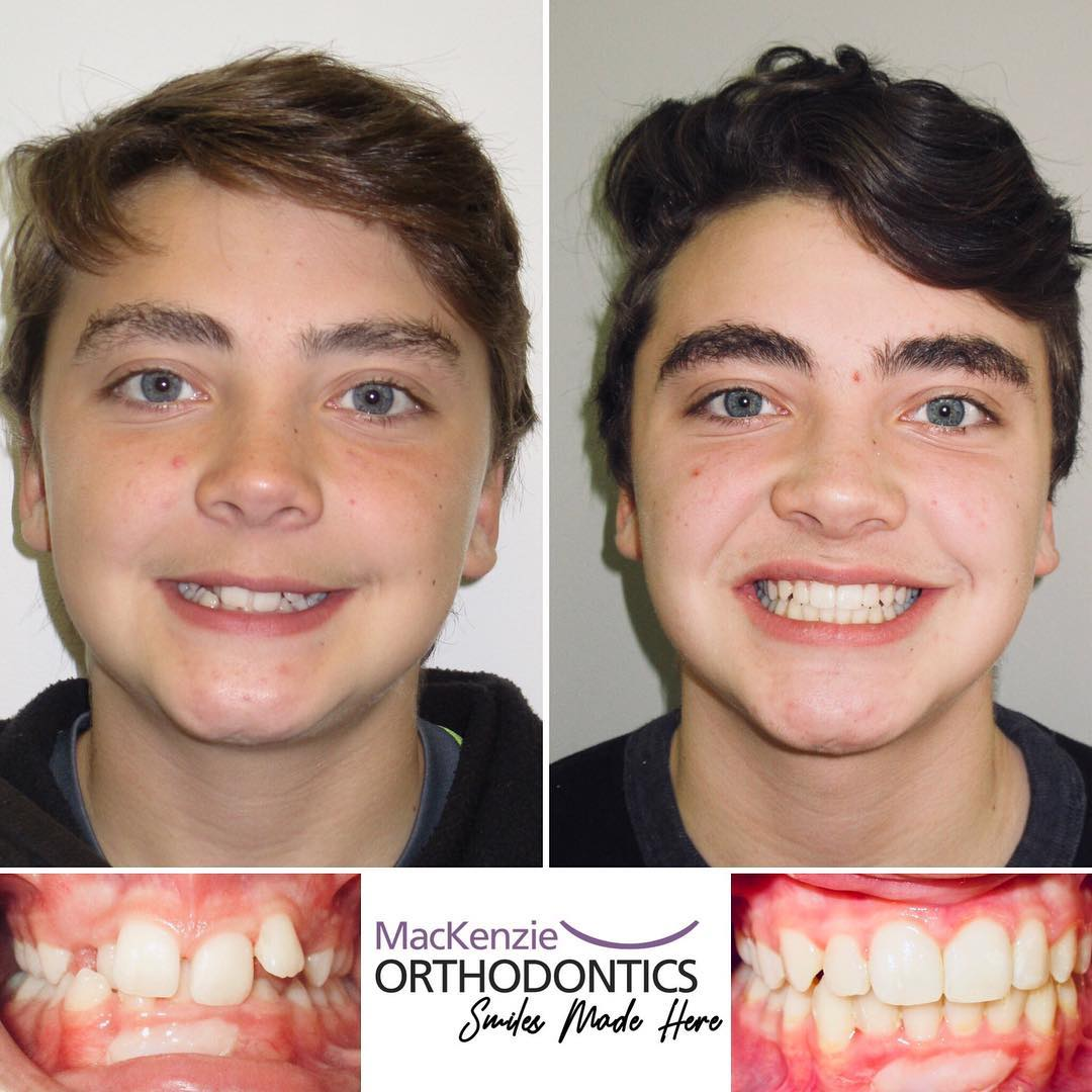 Invisalign for 12 months