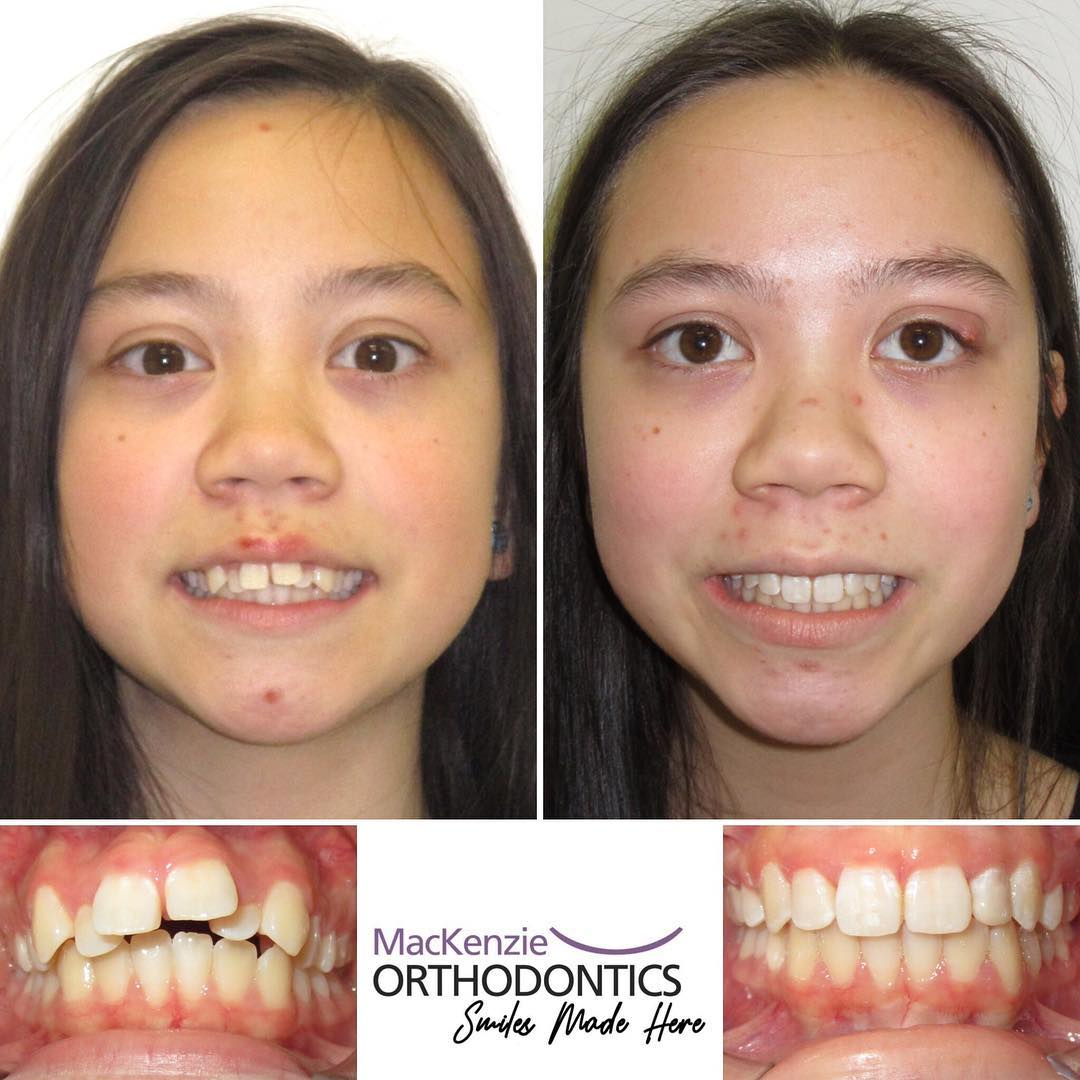 Invisalign for 14 months