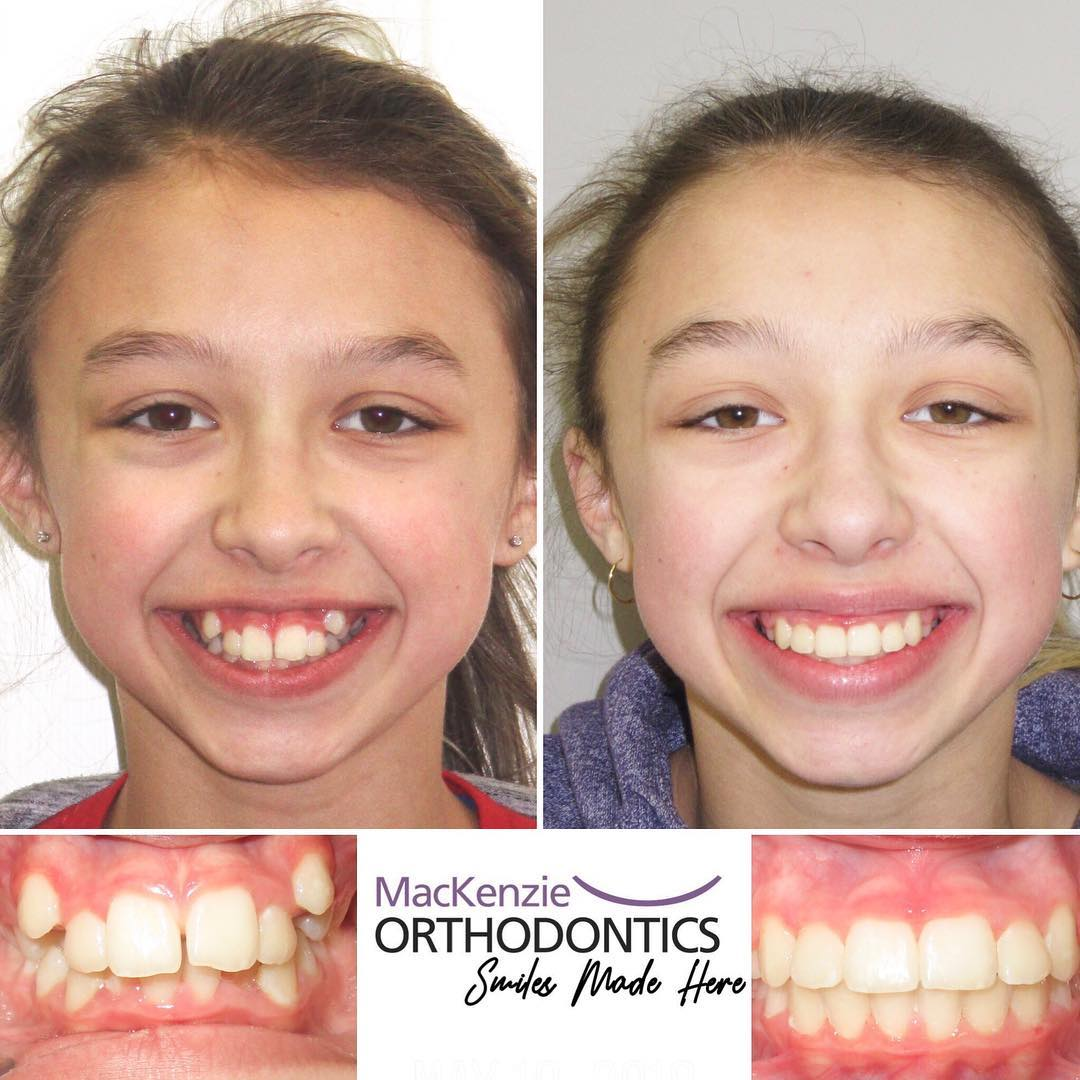 Braces for 11 months