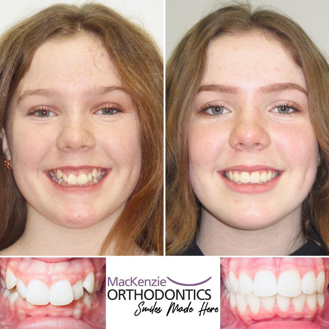 Braces for 13 months