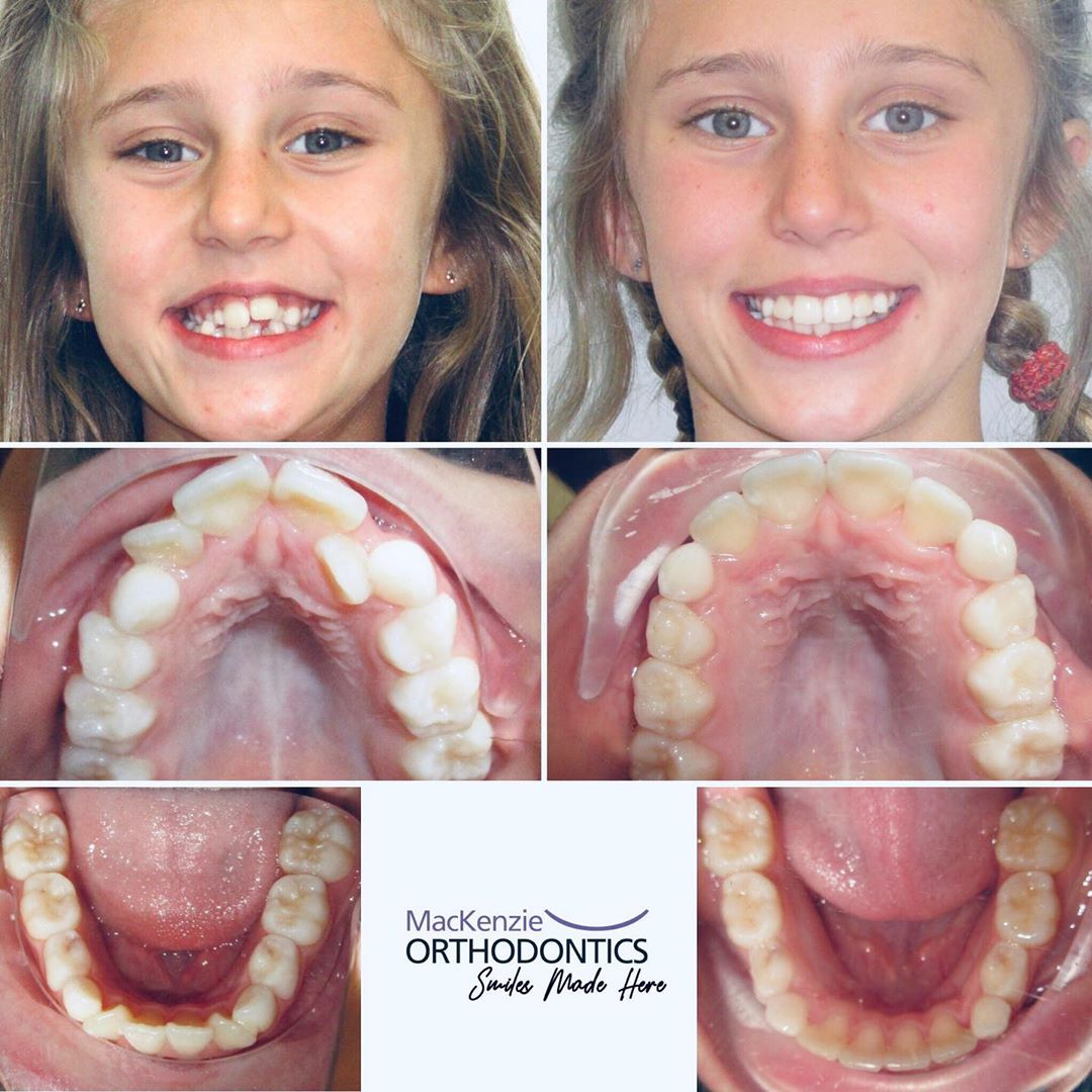 Invisalign for 8 months