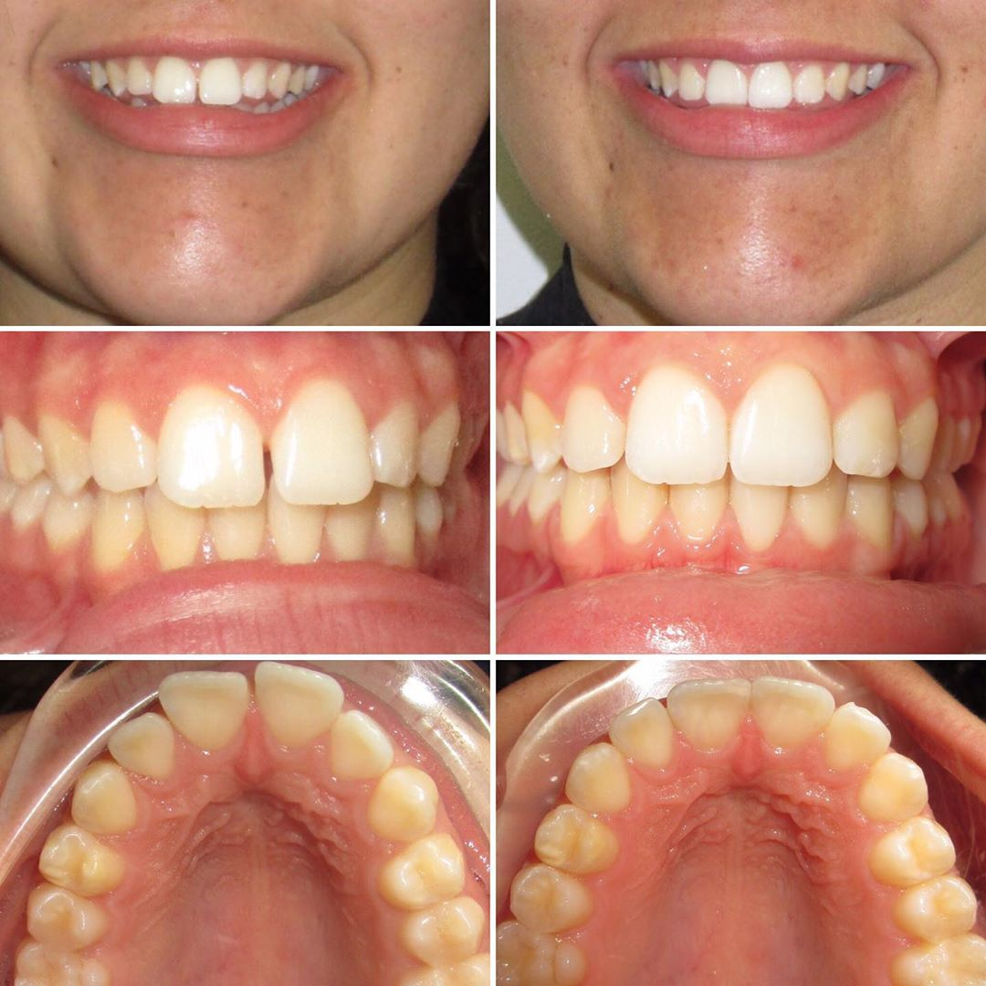 Invisalign for 4 months
