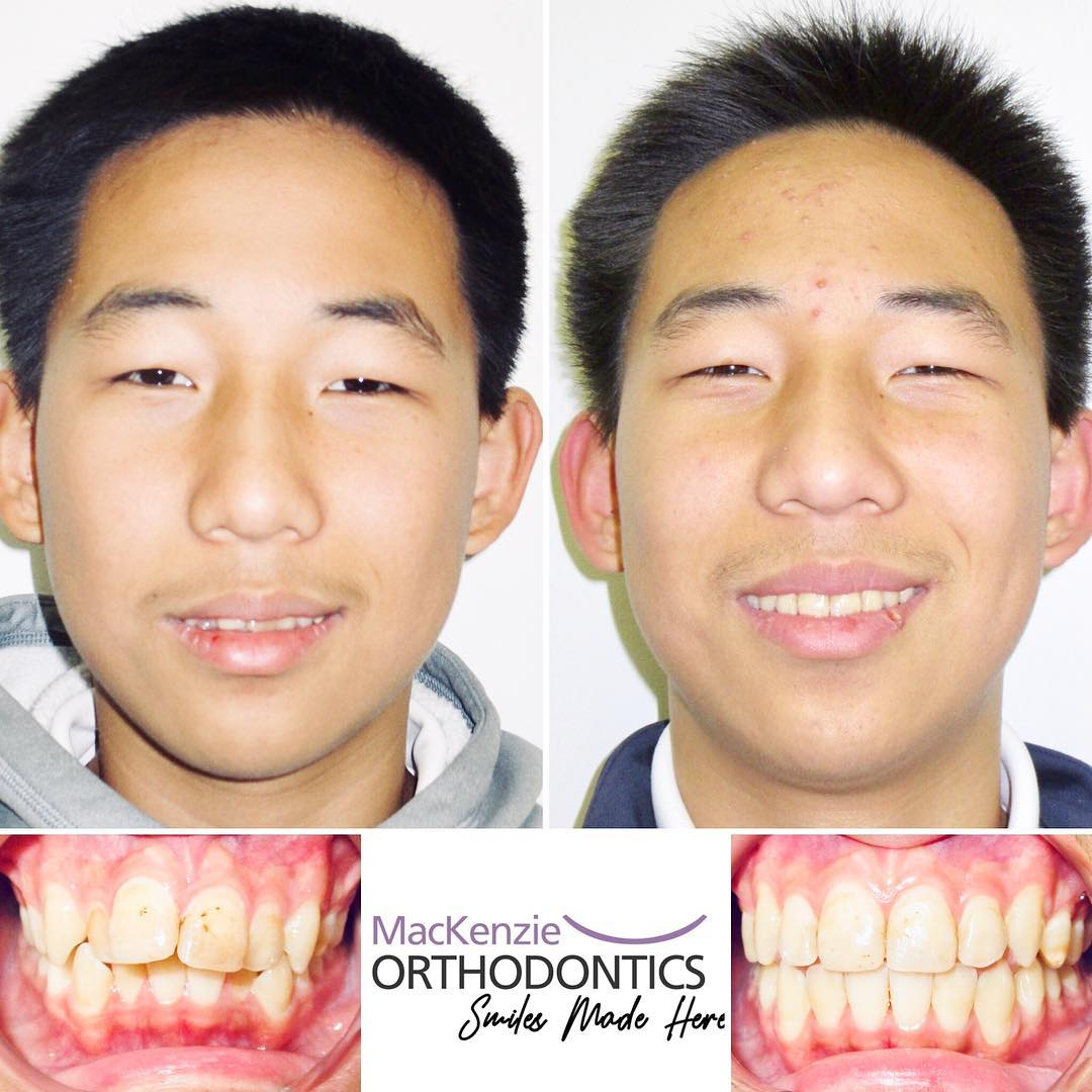 Invisalign for 10 months